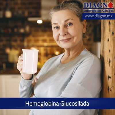 Post Hemoglobina Glucosilada